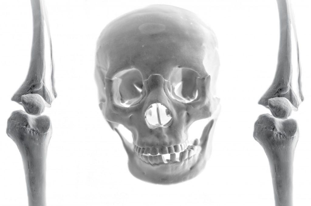 skull-141285643966x